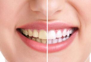 Teeth Whitening Australia
